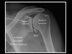 Xray of an arthritic shoulder